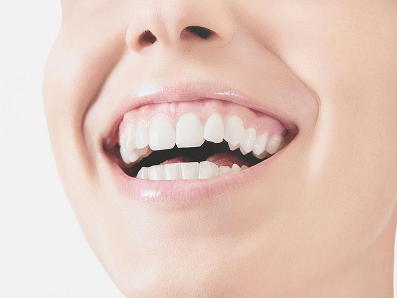 Ästhetik, Angst vorm Zahnarzt, Zahnerhaltung, Karies, Zahnersatz, Prophylaxe, Zahnarzt, Zahnheilkunde, Klammer, Brücke, Krone, Zahnarzt in Lohmar