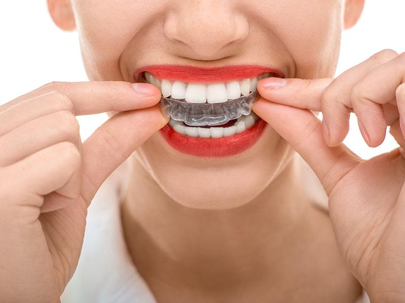 Angstpatienten, Zahnmedizin, Angst vorm Zahnarzt, Zahnerhaltung, Karies, Zahnersatz, Prophylaxe, Zahnarzt, Zahnheilkunde, Klammer, Kieferorthopädie, Krone, Zahnarzt in Lohmar